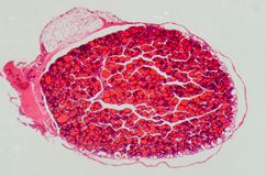 Glande thyroïde anthropotomy médicale de la Science Image libre de droits