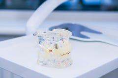 Glaskiefermodell mit eingepflanzten Gebissen auf der arbeitenden zahnmedizinischen Tischplatte Stockfotografie