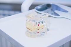 Glaskiefermodell mit eingepflanzten Gebissen auf der arbeitenden zahnmedizinischen Tischplatte Lizenzfreies Stockfoto