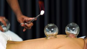 Glass cup with fire for cupping treatment on back