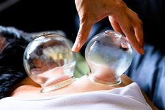 glassfire cupping of traditional chinese medicine Stock Image