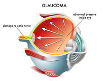 Glaucoma libre illustration