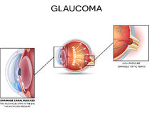 Glaucoma Stock Photos