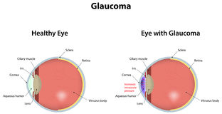 Glaucoma Royalty Free Stock Images