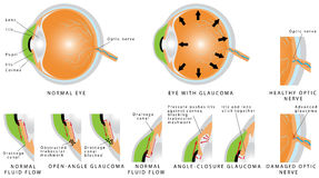 Glaucoma. Is an eye disease and a leading cause of blindness. Open - angle . Angle - closure . The optic nerve is injured. The intra-ocular pressure is Royalty Free Stock Image