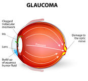 Glaucoma. Is an eye disease and a leading cause of blindness. The optic nerve is injured. The intra-ocular pressure is increased Stock Images