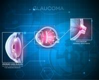 Glaucoma Stock Image