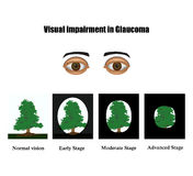 Glaucoma. The field of vision in glaucoma.  Infographics. Vector illustration on  background Stock Photography