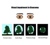 Glaucoma. The field of vision in glaucoma.  Infographics. Vector illustration on  background Stock Photo