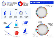 Glaucoma. Medical Infographic set with icons and other elements. medical symbols for design Royalty Free Stock Photography