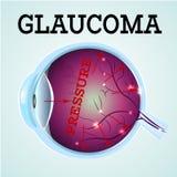 Glaucoma sano dell'occhio Immagine Stock Libera da Diritti