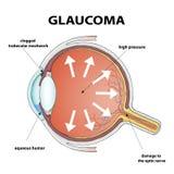 Glaucoma. Stock illustration. Royalty Free Stock Images