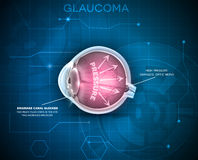 Glaucoma, vision disorder. Detailed anatomy of Glaucoma, eye disorder on a blue technology background stock illustration