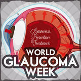 Glaucoma Week Design with Eye Affected for High Intraocular Pressure, Vector Illustration Stock Image