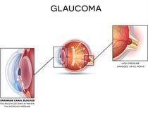 glaucoom Stock Foto's