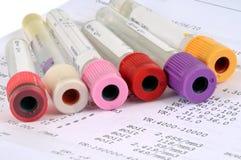 Glazen buizen voor bloedonderzoeken stock foto's