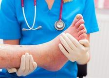 Gli effetti di arteriosclerosi Immagine Stock