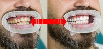 Glimlach before and after bleken Tandzorg en het witten van tanden Resultaat van tanden het witten Tanden die voordien witten royalty-vrije stock fotografie