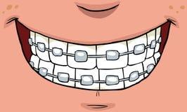 Glimlach met steunen stock illustratie