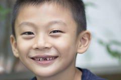 Glimlachende jongen met ontbrekende tanden Stock Afbeelding