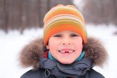 Glimlachende jongen zonder foreteeth Stock Foto's