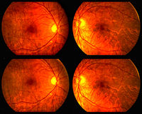 Globes oculaires Images libres de droits