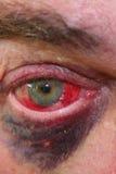 Globo del ojo y ojo morado enrojecidos Foto de archivo