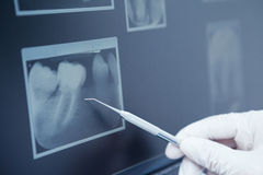 Gloved hand holding dental tool to teeth x-ray Royalty Free Stock Photos