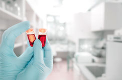 Gloved hand holds liquid samples in plastic tube Stock Images