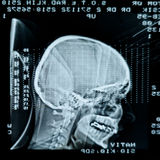Glowing and radiant MRI scan Royalty Free Stock Photography