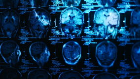 Glowing and radiant MRI scan stock footage