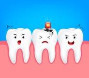 Gnijący ząb z syreną ilustracja wektor
