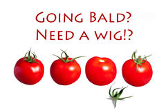 Going bald need a wig? hair loss royalty free stock image