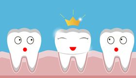 Gold crown on tooth, inset, teeth, protection, prosthesis stock illustration