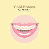 Gold Dental Braces. Types of Dental Braces. Vector flat illustration of smile with braces on the teeth Stock Images