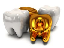 Gold and healthy teeth Stock Images