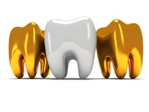 Gold and healthy teeth Royalty Free Stock Photo