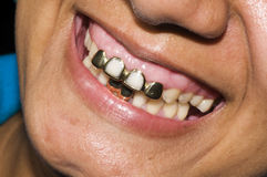 Gold teeth dentisty native corn island nicaragua Stock Images
