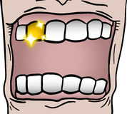 Gold tooth Stock Image