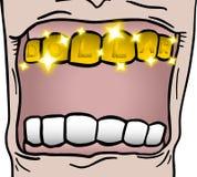 Gold tooth Stock Photos