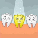 Gold tooth. Vector illustration of a shiny gold tooth Stock Images