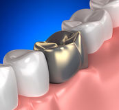 Golden Teeth Mouth Anatomy blue - 3d illustration Stock Images