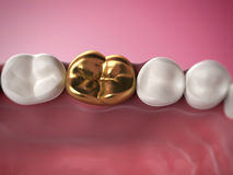 Golden tooth Royalty Free Stock Image