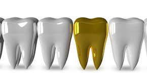 Golden tooth and white ones Stock Photo