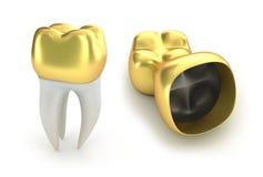Goldene zahnmedizinische Kronen und Zahn Lizenzfreies Stockfoto