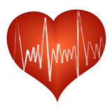 Golpe de corazón cardiaco Imágenes de archivo libres de regalías