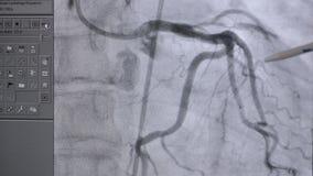 Golpeo real del corazón de la radiografía en la acción almacen de video