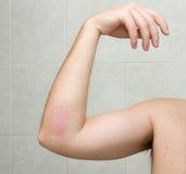 Gomito raschiato #3 - 20 giorni dopo l'incidente. Immagini Stock Libere da Diritti