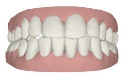 Gommes et dents illustration libre de droits