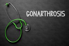 Gonarthrosis Concept on Chalkboard. 3D Illustration. Medical Concept: Gonarthrosis Handwritten on Black Chalkboard. Medical Concept: Black Chalkboard with Stock Photo